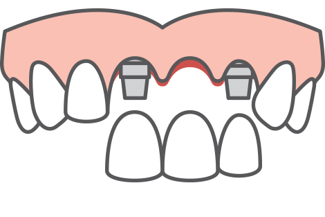 multiple-tooth dental implants icon