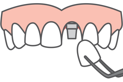 single tooth dental implant icon