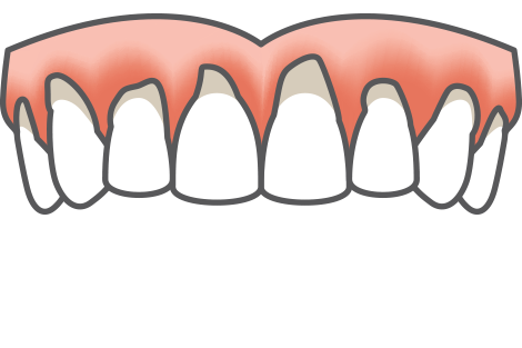 supplemental dental implant treatment icon